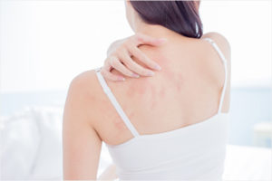 アトピー肌は脱毛サロンで施術できる?適した処理方法とは